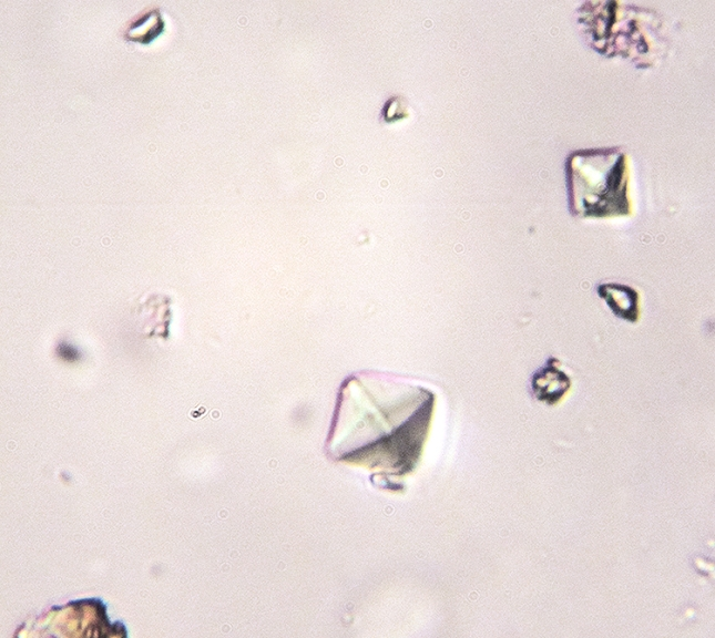 Calcium oxalate from Cryptothecia - Copy
